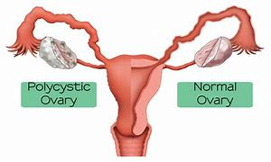 PCOS. What are the symptoms.